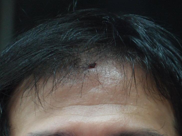 2015年4月1日午後の怪我