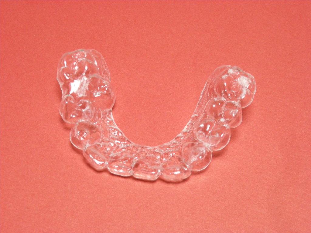 歯ぎしり防止マウスピース
